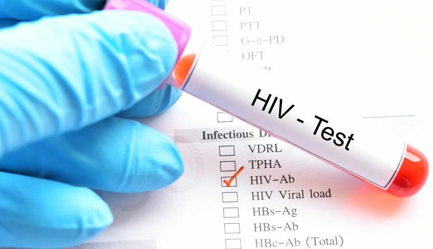 CONOCE LAS MEDIDAS QUE DEBEN SEGUIR LOS PACIENTES CON VIH Y QUE CONTRAIGAN COVID-19
